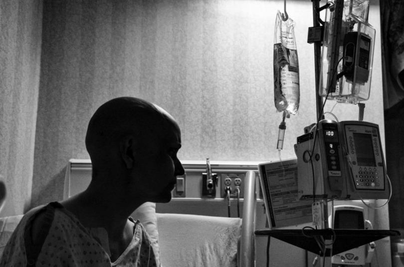 volto-del-cancro018