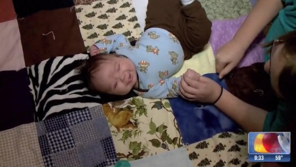 Richie 3 mesi, è nato senza occhi, ma i suoi genitori lo amano tanto!